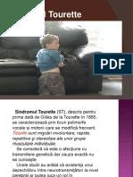 Sindromul Tourette