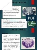 Tabes Dorsal 1