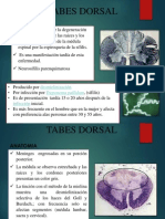Tabes Dorsal 2