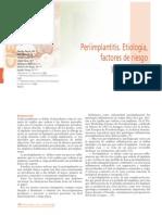197 CIENCIA Periimplantitis Tratamiento