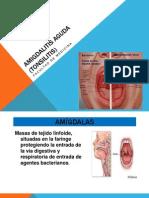 Amigdalitis Aguda (TONSILITIS)