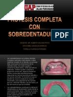 Prótesis Completa Con Sobredentaduras Corregida