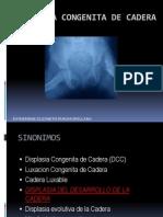 Displasia Congenita de Cadera