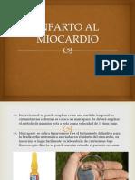 Infarto Al Miocardio