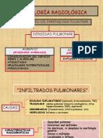 Neumonia y Atelectasia.dra ROCIO AZNARAN