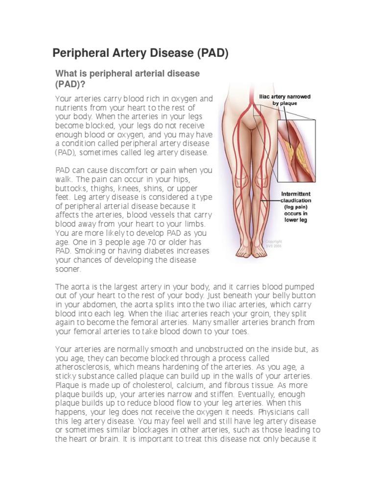 Peripheral Artery Disease | Artery | Angiography