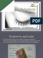 Ptosis Palpebral.Clasificación
