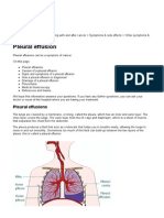 Pleuraleffusions(Cb)