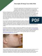 La Curcumina - La Meraviglia Di Droga Cura Della Pelle Dell'Acne
