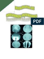 Arteriografía de Miembros Inferiores