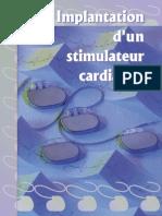 Implantation Stimulateur Cardiaque