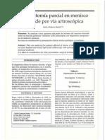 Menisectomia Parcial en Menisco Discoide Por via Artroscopica