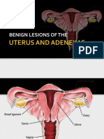 Benign Lesions of the Uterus and Adnexa 2012