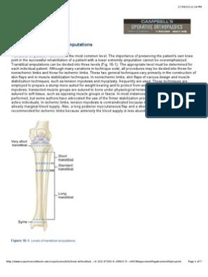 Bka   Prosthesis   Amputation