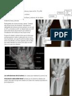 Anatomia de Muñeca