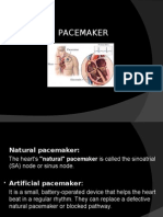 Pacemakers