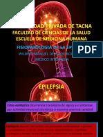 Epilepsia Upt