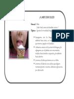 ejercicios_linguales