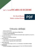 Lp5 Urticaria Si Eczeme