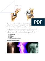 What is Joint Replacement Surgery- Dr. L. Tomar