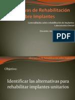 Alternativas de Rehabilitación Sobre Implantes