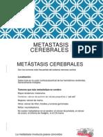 Metastasis Cerebrales
