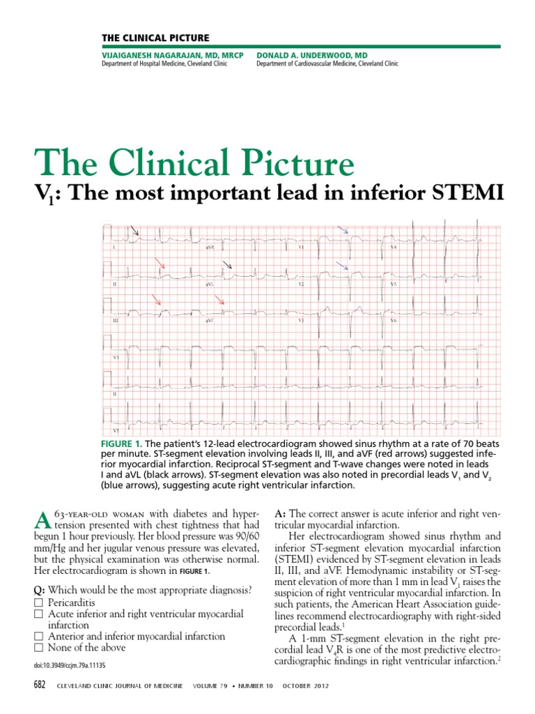 V1 - The Most Important Lead in Inferior STEMI | Myocardial