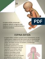 espinabifida-100503174702-phpapp01