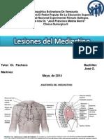 Lesiones Del Mediastino Jose