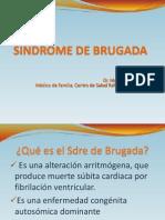 Sindrome de Brugada2