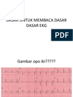 ekg_histo