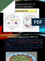 Hipersensibilidad de Tipo III y IV