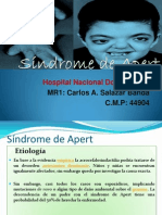 Síndrome de Apert