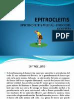 EPITROCLEITIS 2