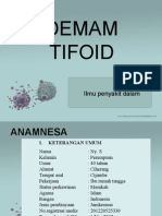 PPT Demam tifoid