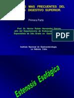 Sx Estenosis Esofágica (1)