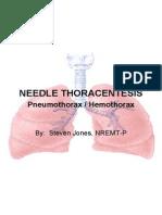 Pneumothorax-Hemopneumothorax Needle Decompression