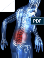 Transtornos Musculoesqueleticos