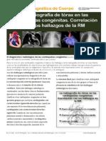 La Radiografia de Torax en Las Cardiopatias Congenitas