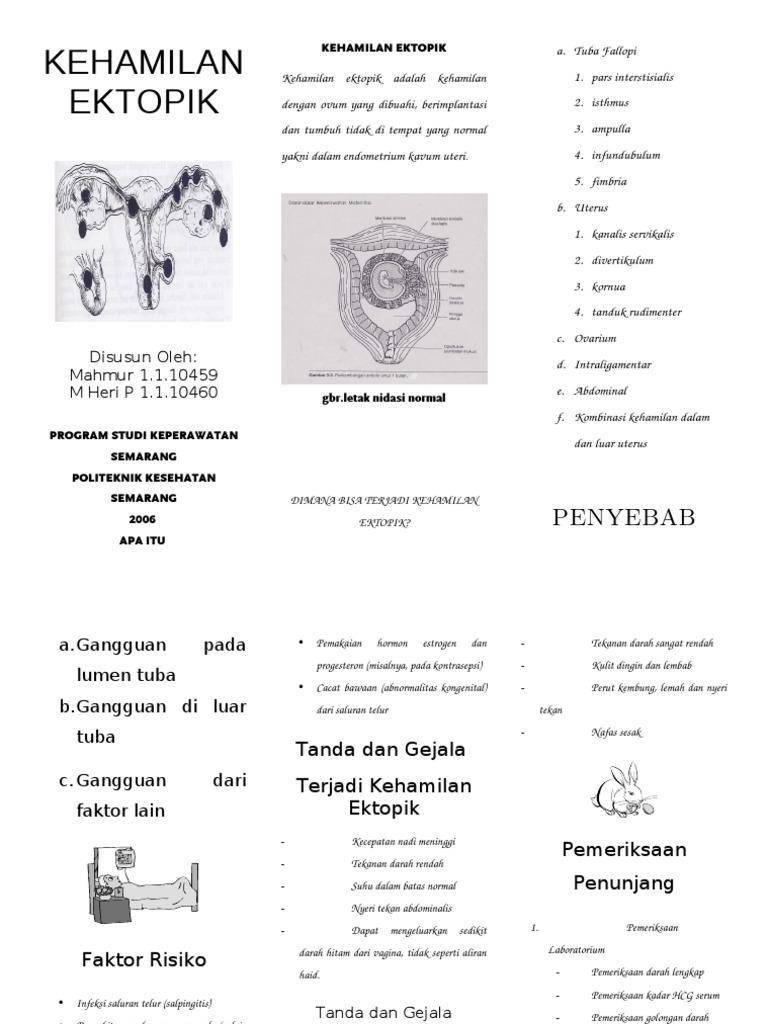 Leaflet Kehamilan Ektopik
