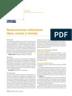 Reabsorciones Radiculares