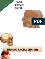 Parlisis Facial (1)