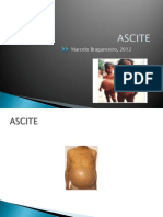 Semiologia Da Ascite e Tumores Abdominais