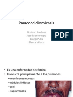 Paracoccidiomicosis