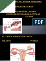 Hemorragias 1 y 2 Trimestre