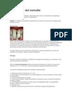 hipoplasia.... odontocapsulas