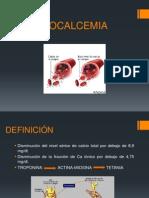HIPOCALCEMIA diapositivas