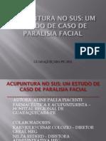 Tratamento de Paralisia Facial Com Acupuntura No Sus
