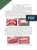 60389205 Toma de Impresion Para Protesis Fija Utilizando El Sistema de Cofia Dental