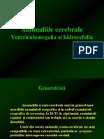 Anomaliile cerebrale